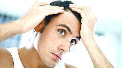 infoltimento capelli naturale