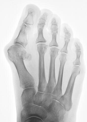 radiografia dell'alluce valgo
