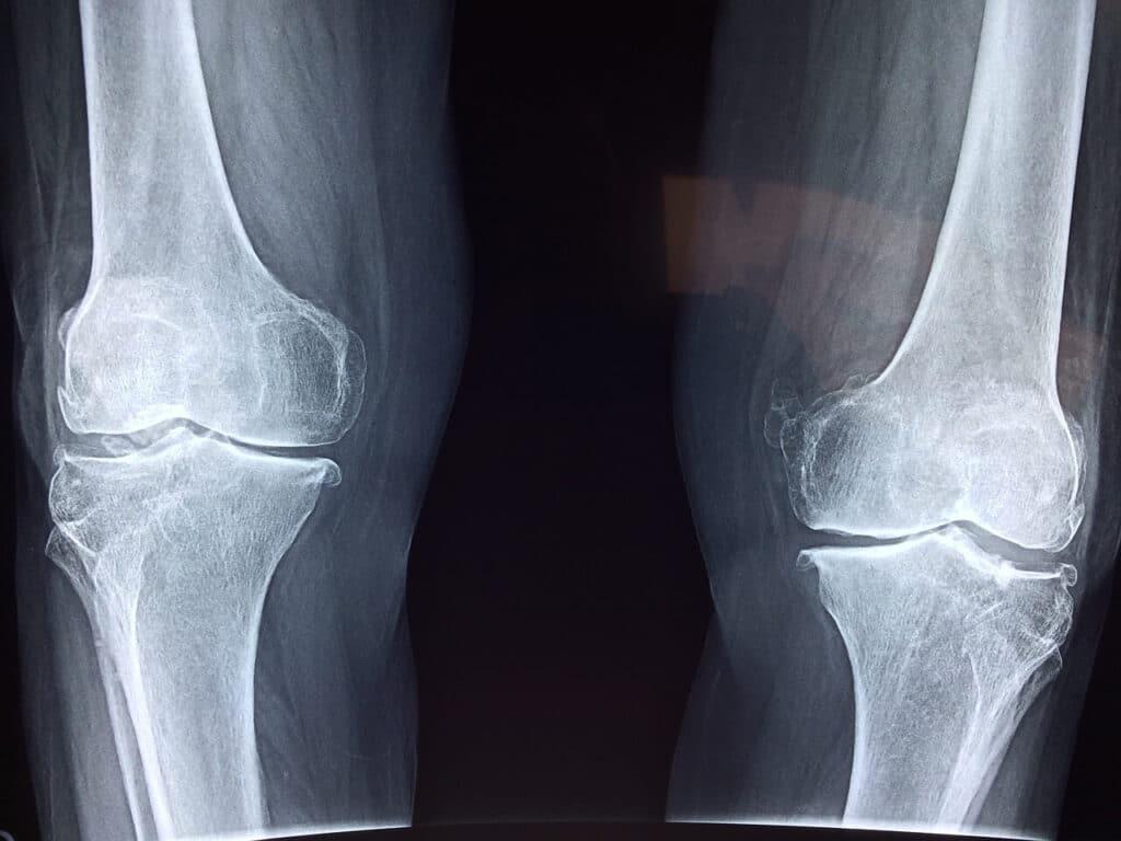 radiografi delle articolazioni