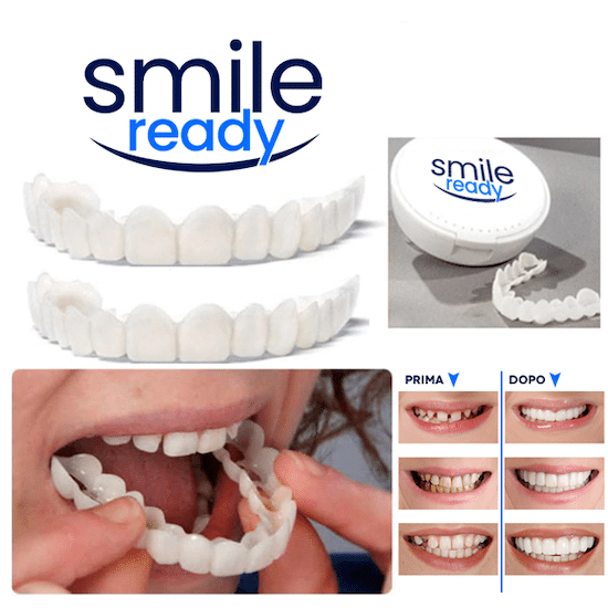 Smile Ready faccette dentali